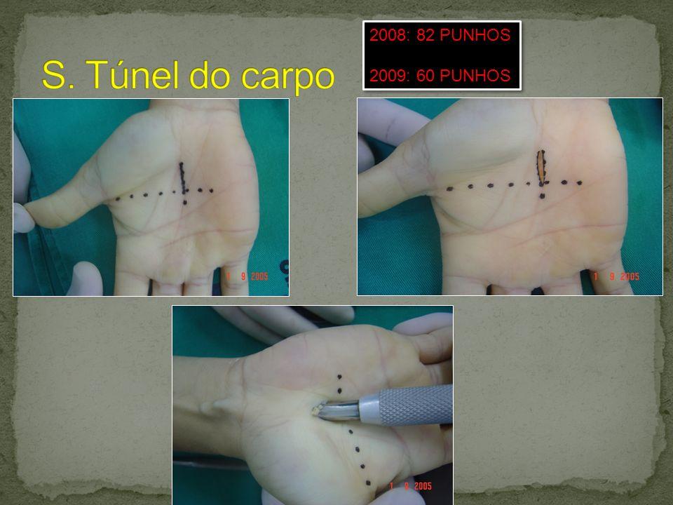S. Túnel do carpo 2008: 82 PUNHOS 2009: 60 PUNHOS