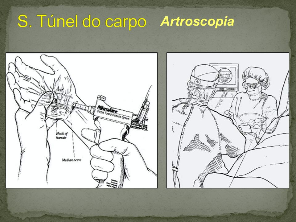 S. Túnel do carpo Artroscopia
