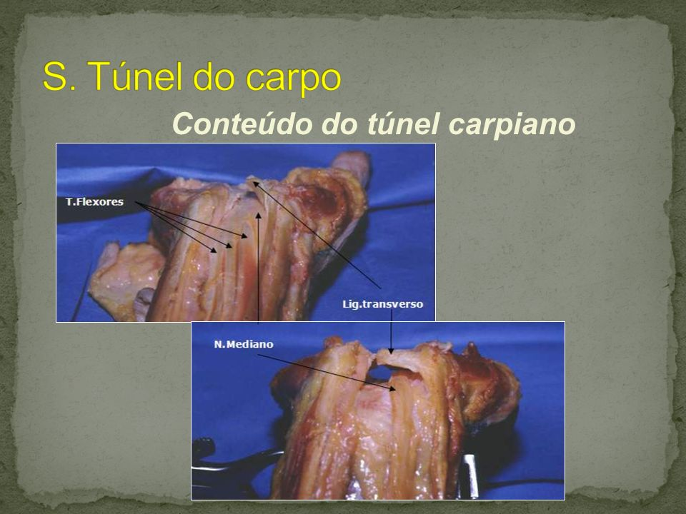 S. Túnel do carpo Conteúdo do túnel carpiano