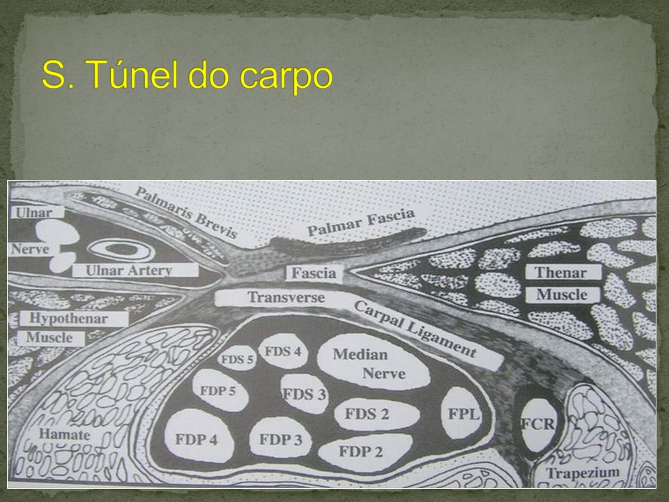 S. Túnel do carpo