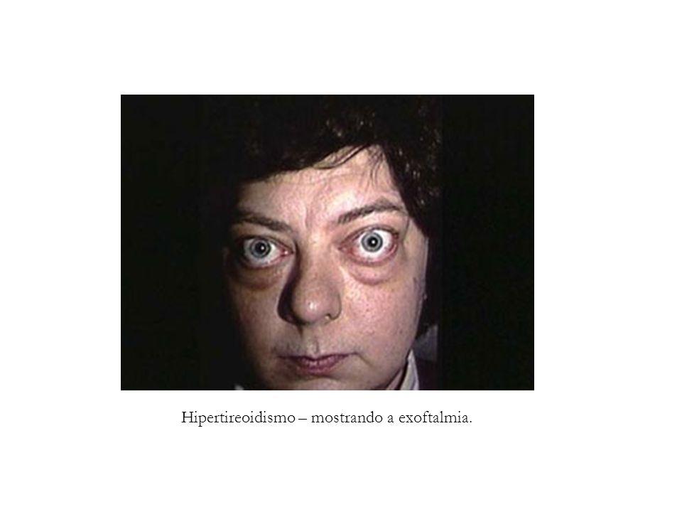 Hipertireoidismo – mostrando a exoftalmia.