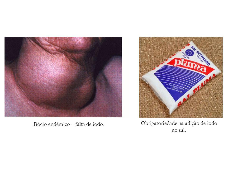 Bócio endêmico – falta de iodo. Obrigatoriedade na adição de iodo