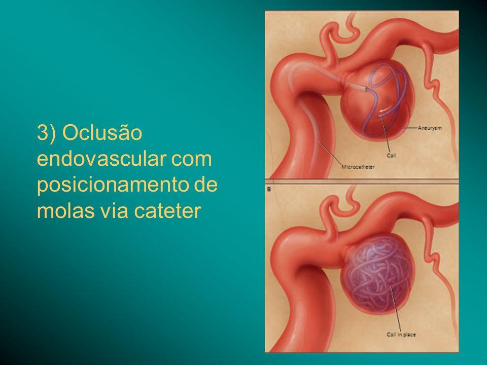 3) Oclusão endovascular com posicionamento de molas via cateter
