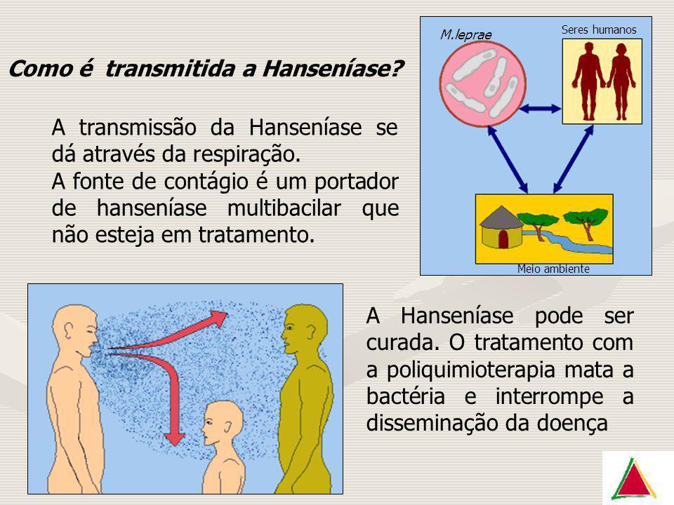 Como é transmitida a Hanseníase
