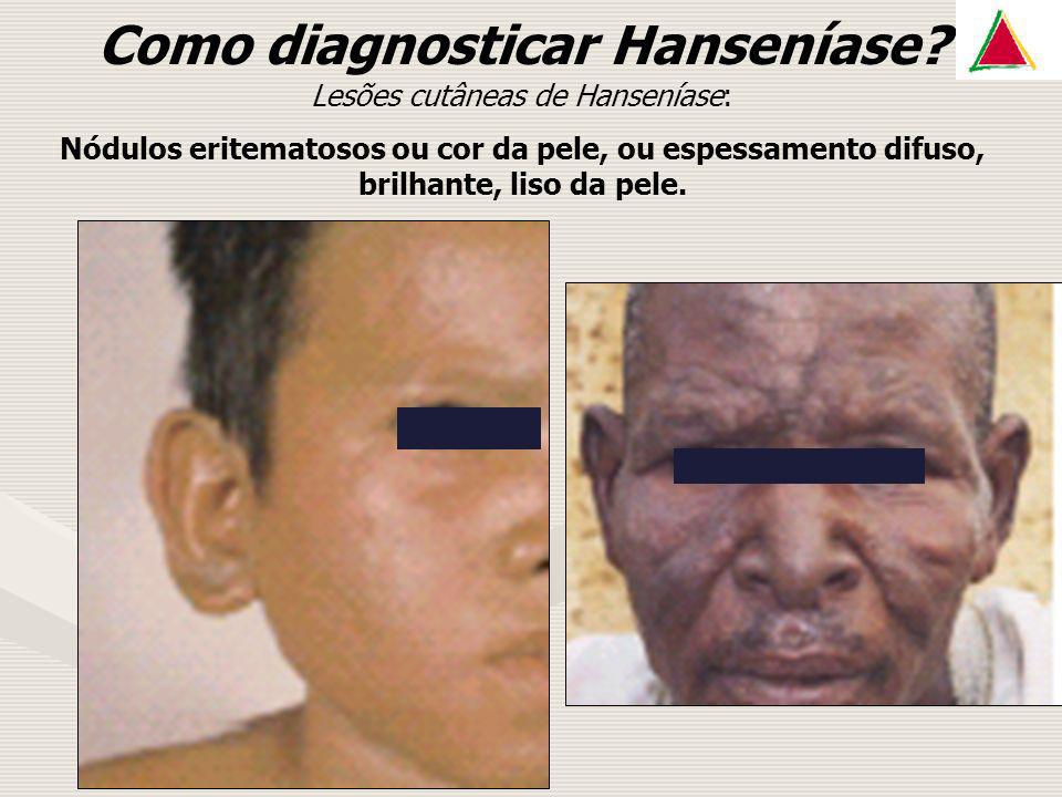Como diagnosticar Hanseníase Lesões cutâneas de Hanseníase: