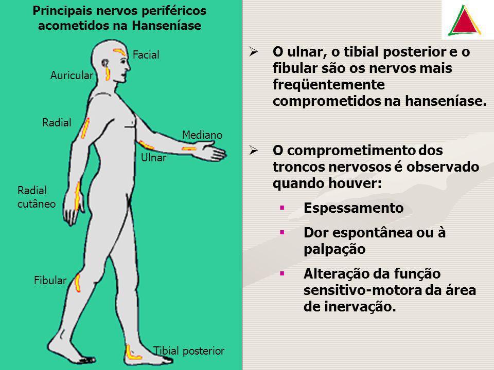 Principais nervos periféricos acometidos na Hanseníase