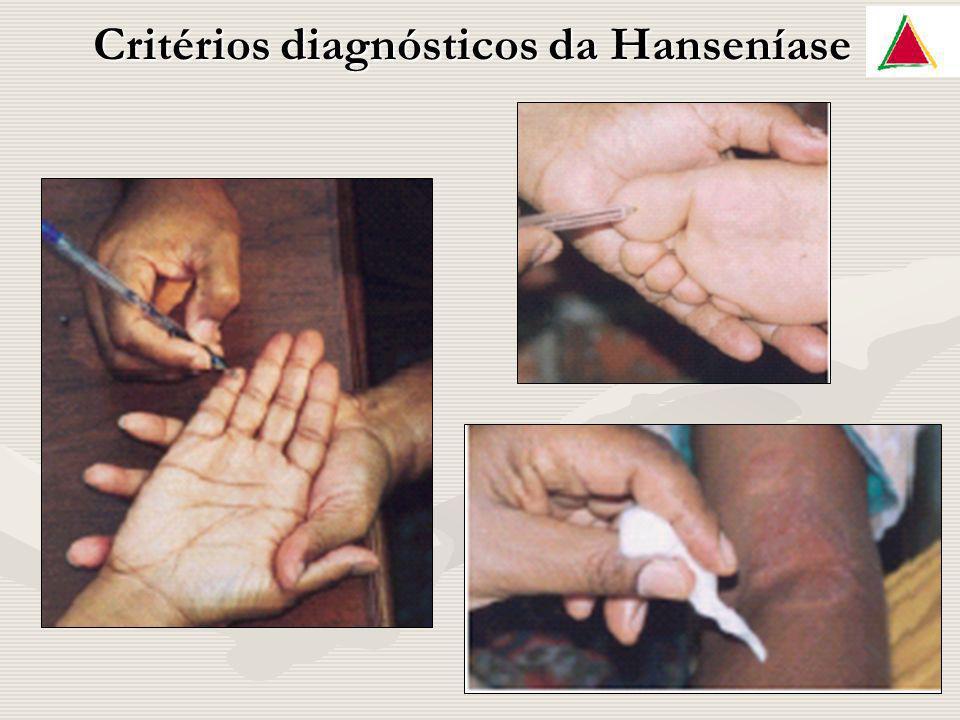 Critérios diagnósticos da Hanseníase