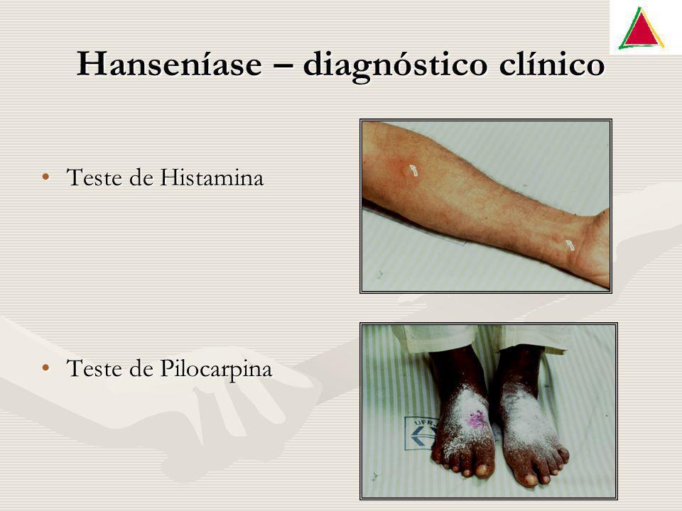 Hanseníase – diagnóstico clínico