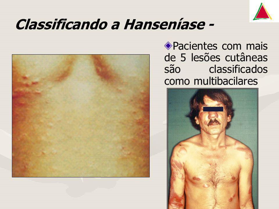 Classificando a Hanseníase -