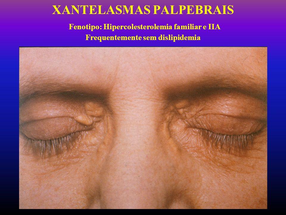 XANTELASMAS PALPEBRAIS Fenotipo: Hipercolesterolemia familiar e IIA Frequentemente sem dislipidemia