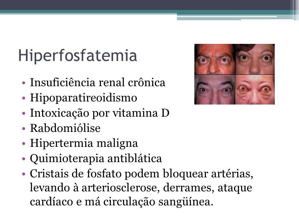 Hiperfosfatemia Insuficiência renal crônica Hipoparatireoidismo
