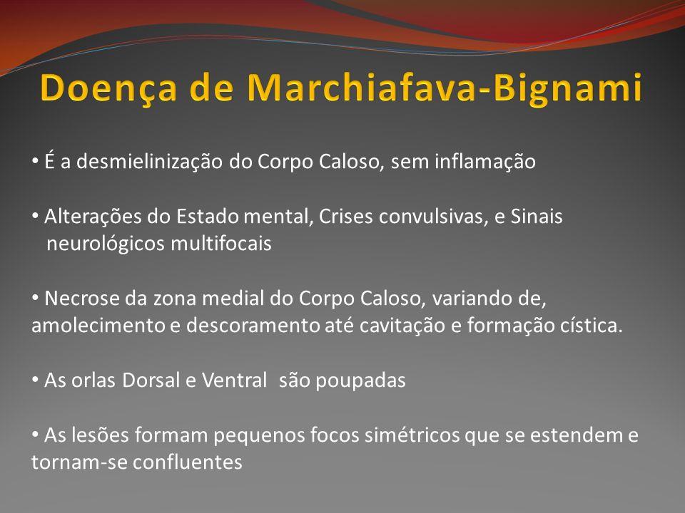 Doença de Marchiafava-Bignami