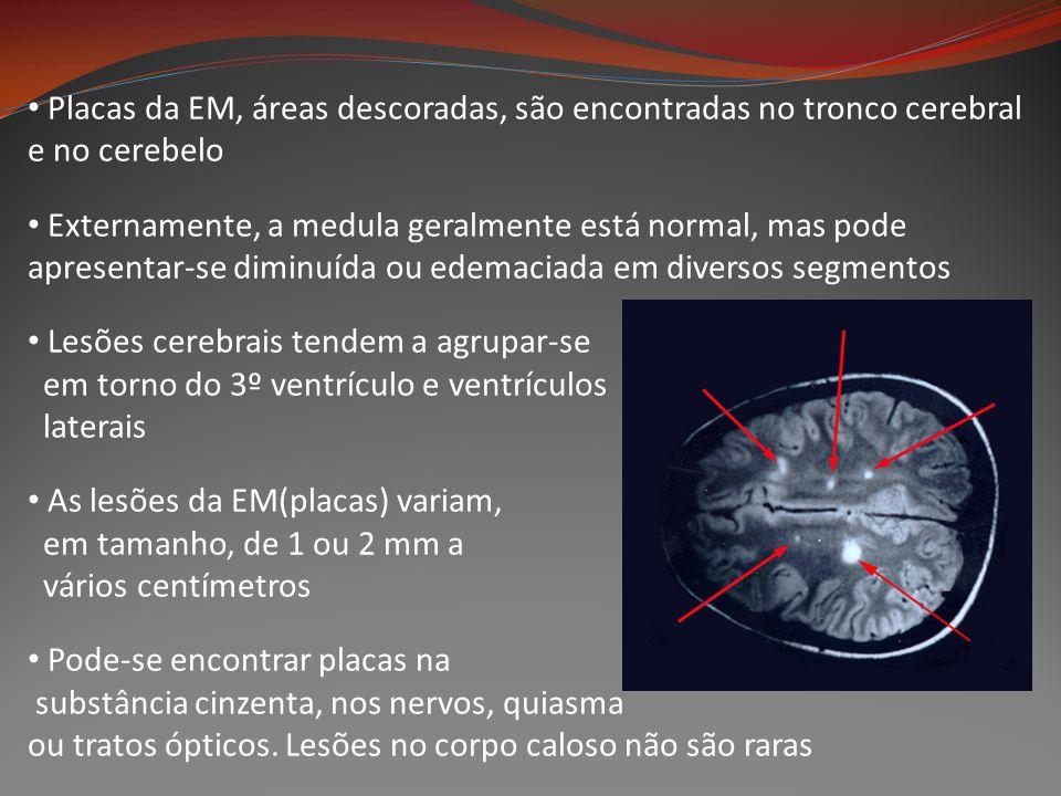 Placas da EM, áreas descoradas, são encontradas no tronco cerebral e no cerebelo