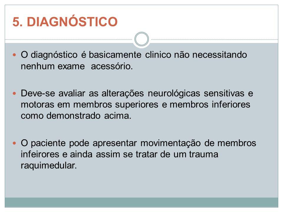 5. DIAGNÓSTICO O diagnóstico é basicamente clinico não necessitando nenhum exame acessório.