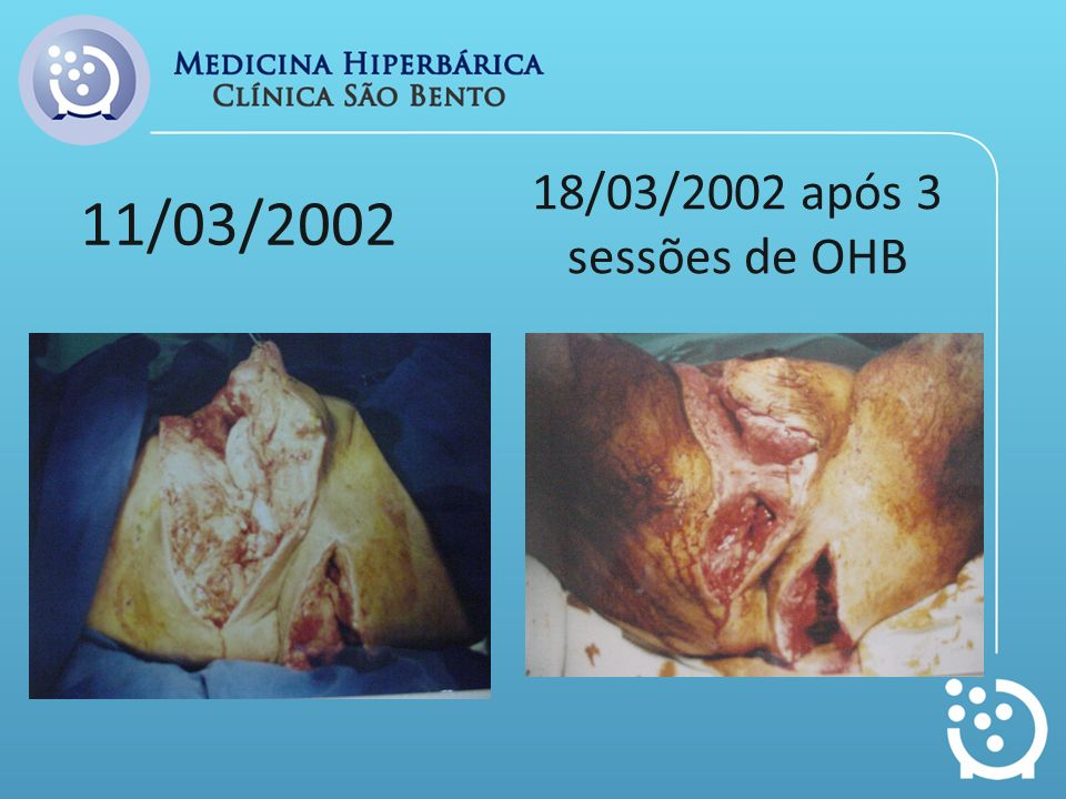 11/03/2002 18/03/2002 após 3 sessões de OHB
