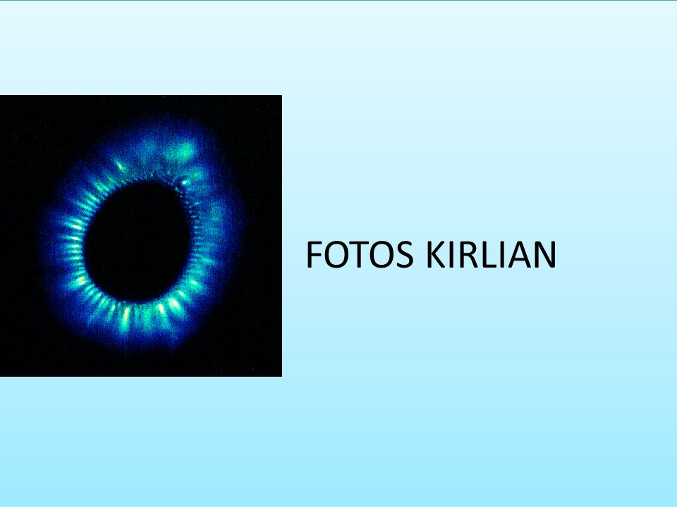 FOTOS KIRLIAN
