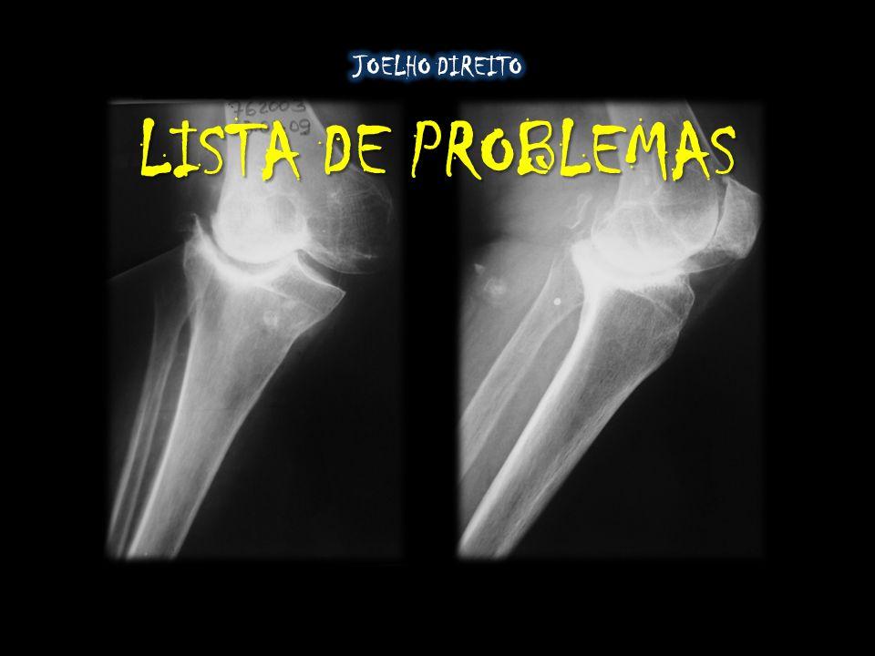 JOELHO DIREITO LISTA DE PROBLEMAS