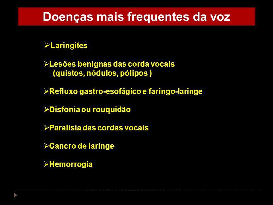 Doenças mais frequentes da voz