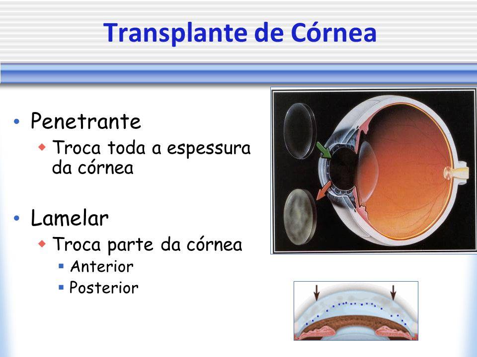 Transplante de Córnea Penetrante Lamelar