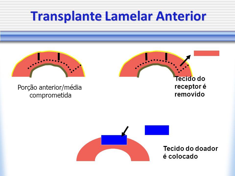 Transplante Lamelar Anterior