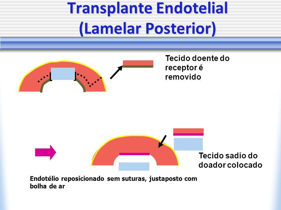 Transplante Endotelial (Lamelar Posterior)