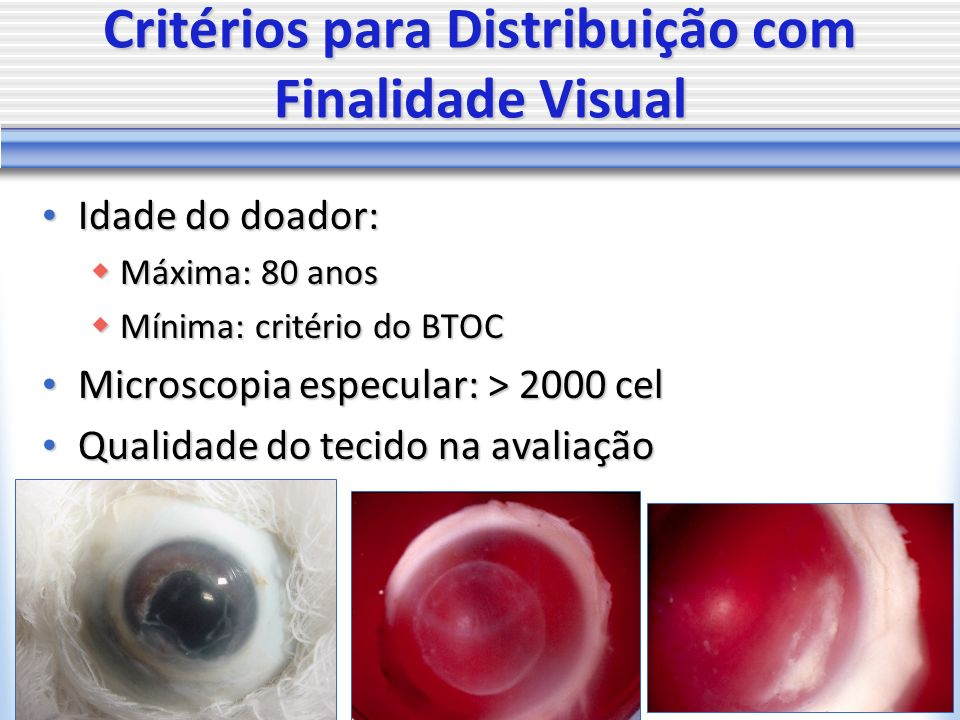 Critérios para Distribuição com Finalidade Visual