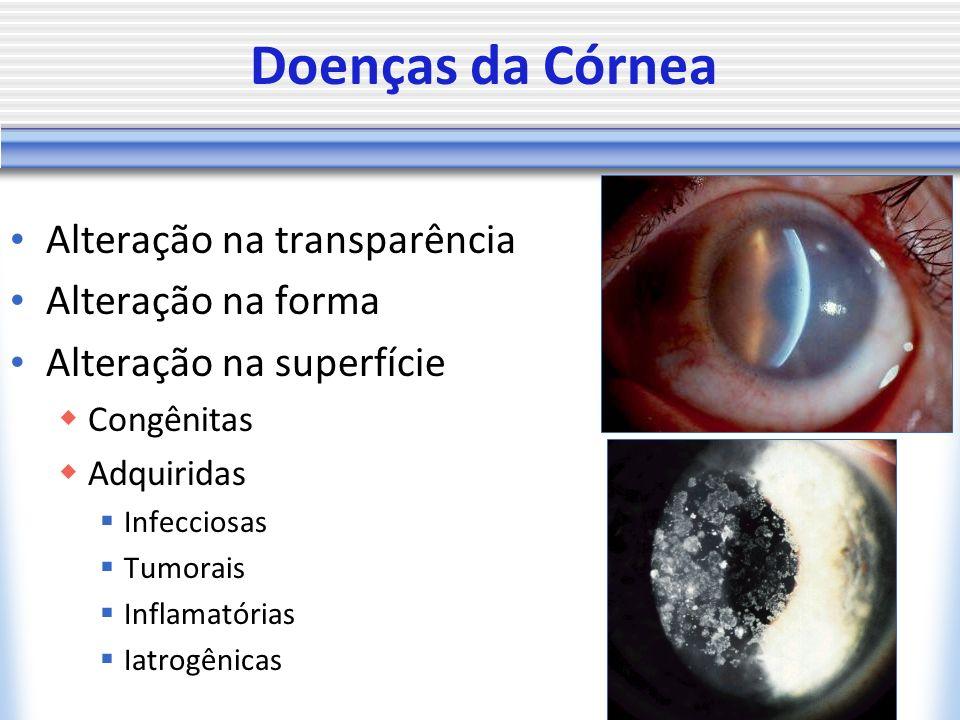 Doenças da Córnea Alteração na transparência Alteração na forma