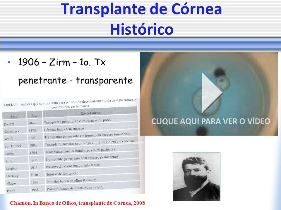 Transplante de Córnea Histórico