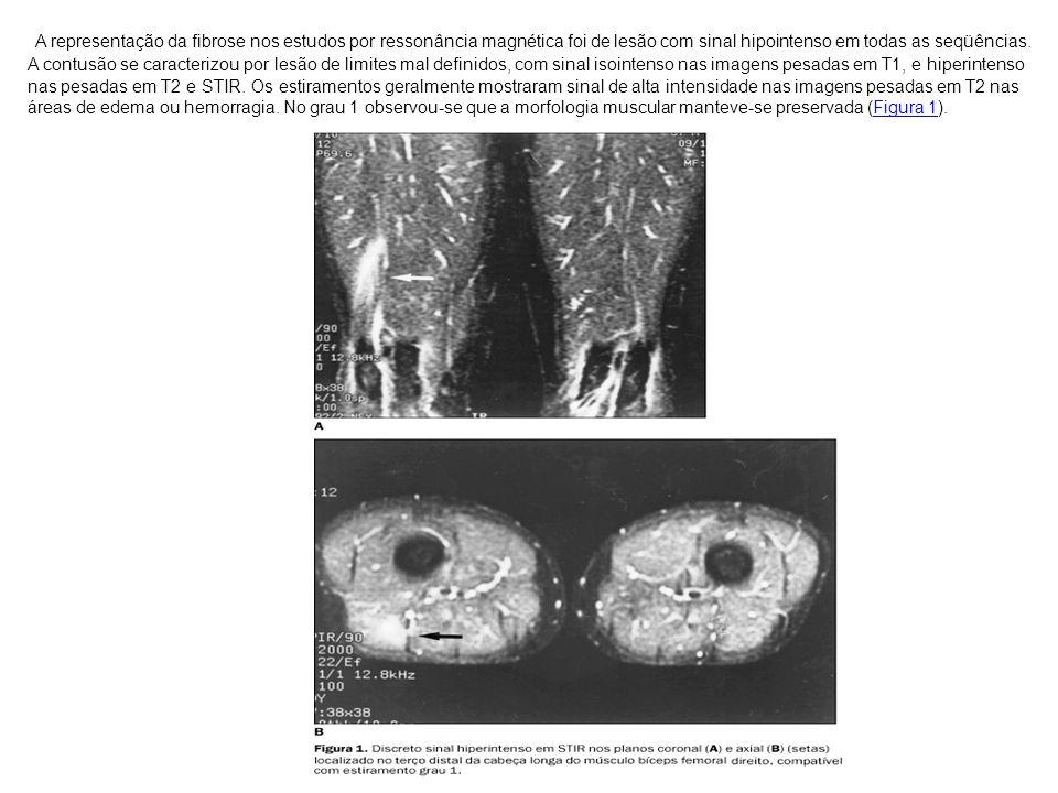 A representação da fibrose nos estudos por ressonância magnética foi de lesão com sinal hipointenso em todas as seqüências.