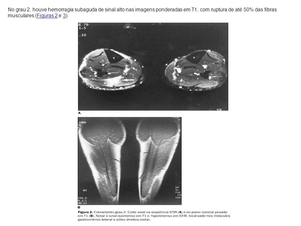 No grau 2, houve hemorragia subaguda de sinal alto nas imagens ponderadas em T1, com ruptura de até 50% das fibras musculares (Figuras 2 e 3).