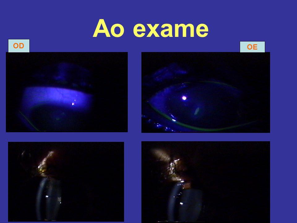 Ao exame OD OE