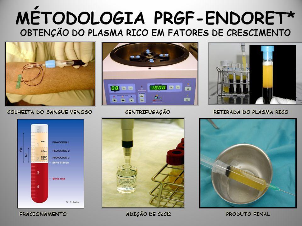 MÉTODOLOGIA PRGF-ENDORET