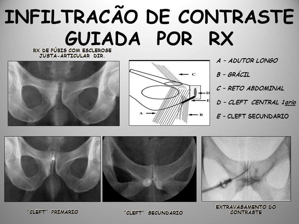 INFILTRACÃO DE CONTRASTE GUIADA POR RX