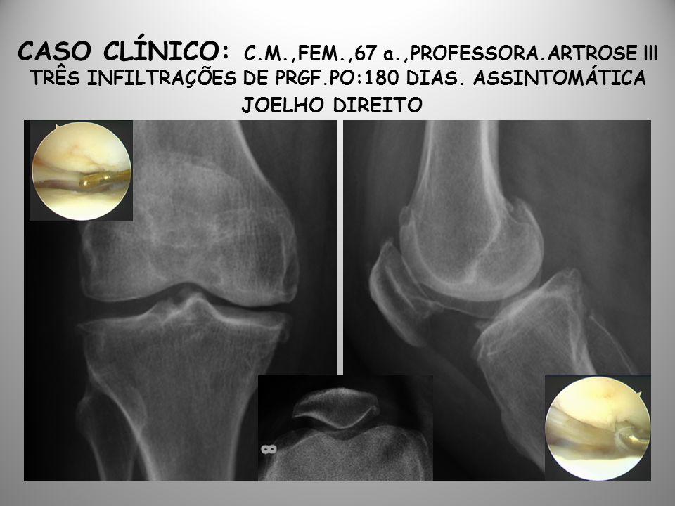 CASO CLÍNICO: C. M. ,FEM. ,67 a. ,PROFESSORA