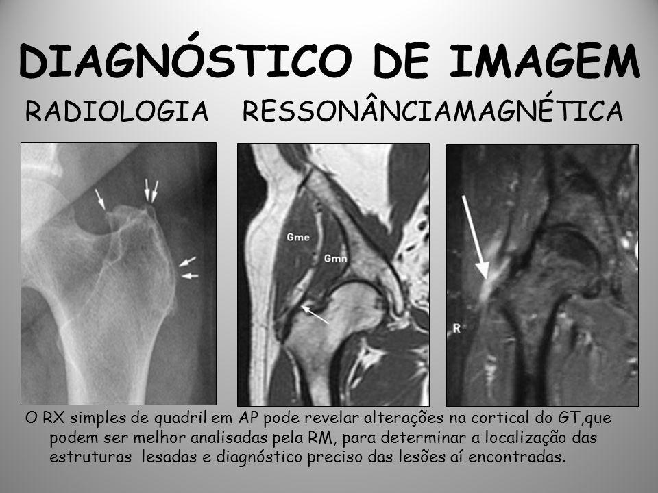 DIAGNÓSTICO DE IMAGEM RADIOLOGIA RESSONÂNCIAMAGNÉTICA