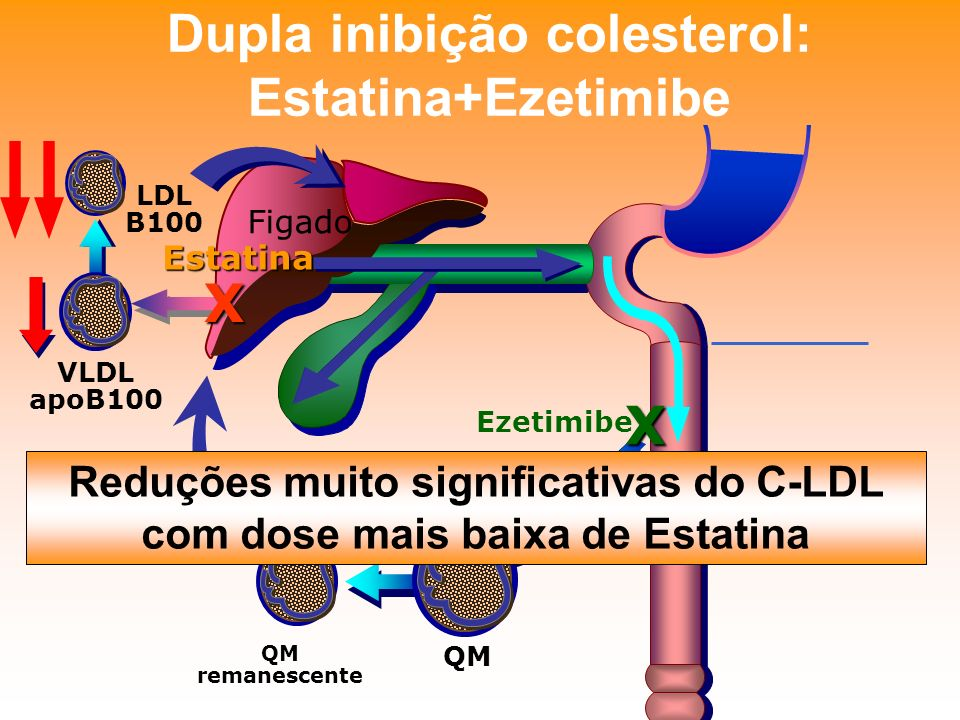 Dupla inibição colesterol: Estatina+Ezetimibe