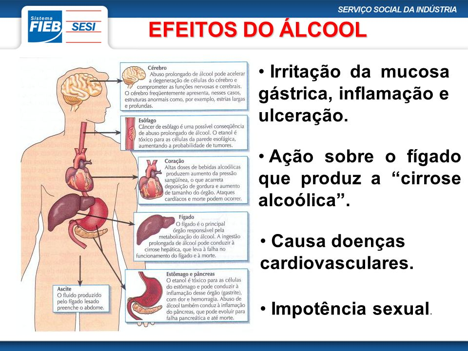 EFEITOS DO ÁLCOOL Irritação da mucosa gástrica, inflamação e ulceração. Ação sobre o fígado que produz a cirrose alcoólica .