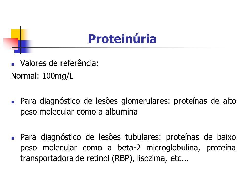 Proteinúria Valores de referência: Normal: 100mg/L