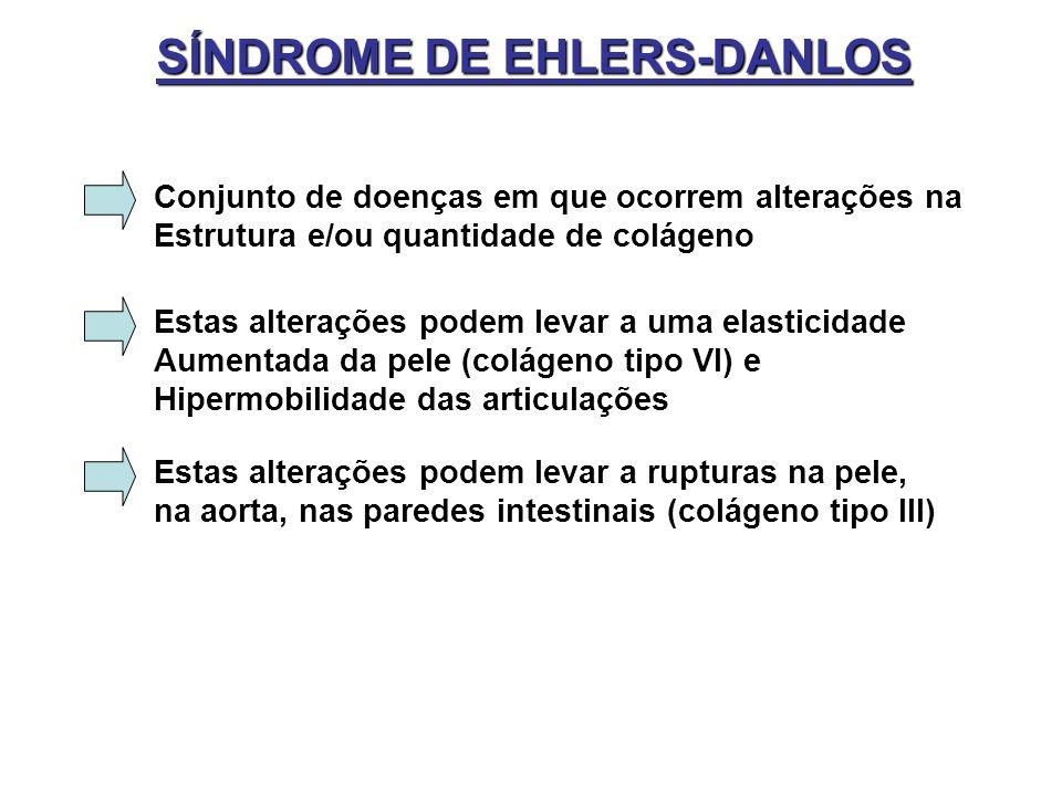 SÍNDROME DE EHLERS-DANLOS