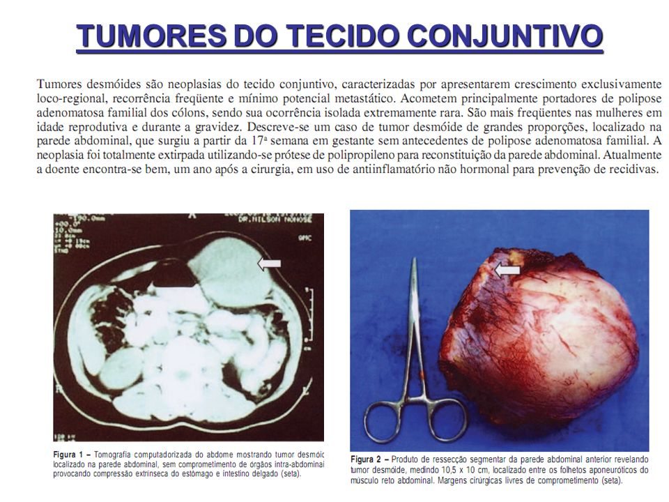 TUMORES DO TECIDO CONJUNTIVO