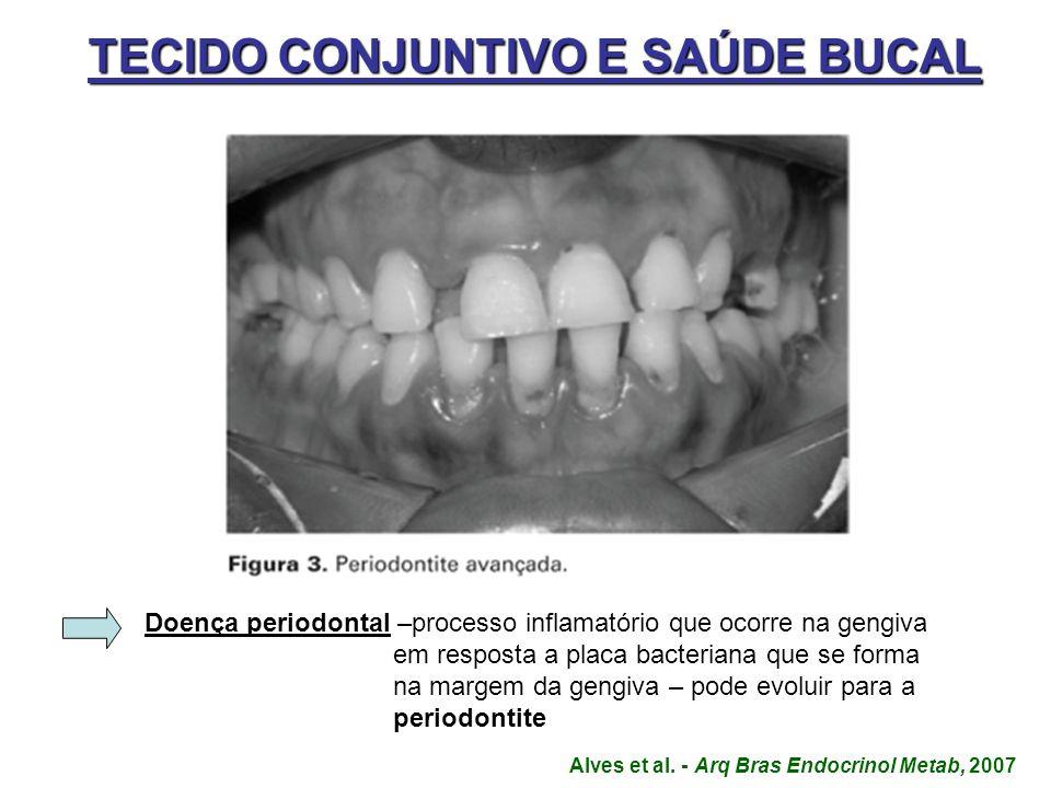 TECIDO CONJUNTIVO E SAÚDE BUCAL