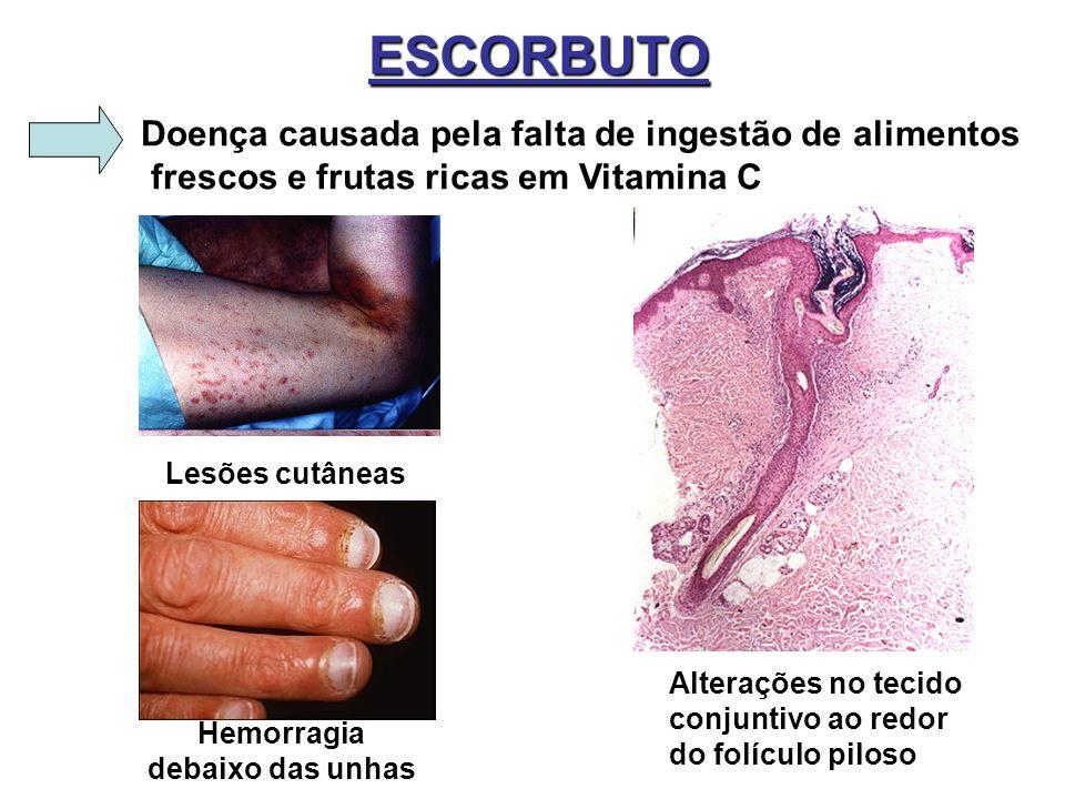 ESCORBUTO Doença causada pela falta de ingestão de alimentos