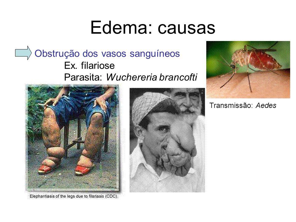 Edema: causas Obstrução dos vasos sanguíneos Ex. filariose