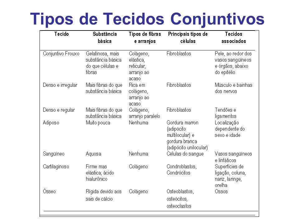 Tipos de Tecidos Conjuntivos