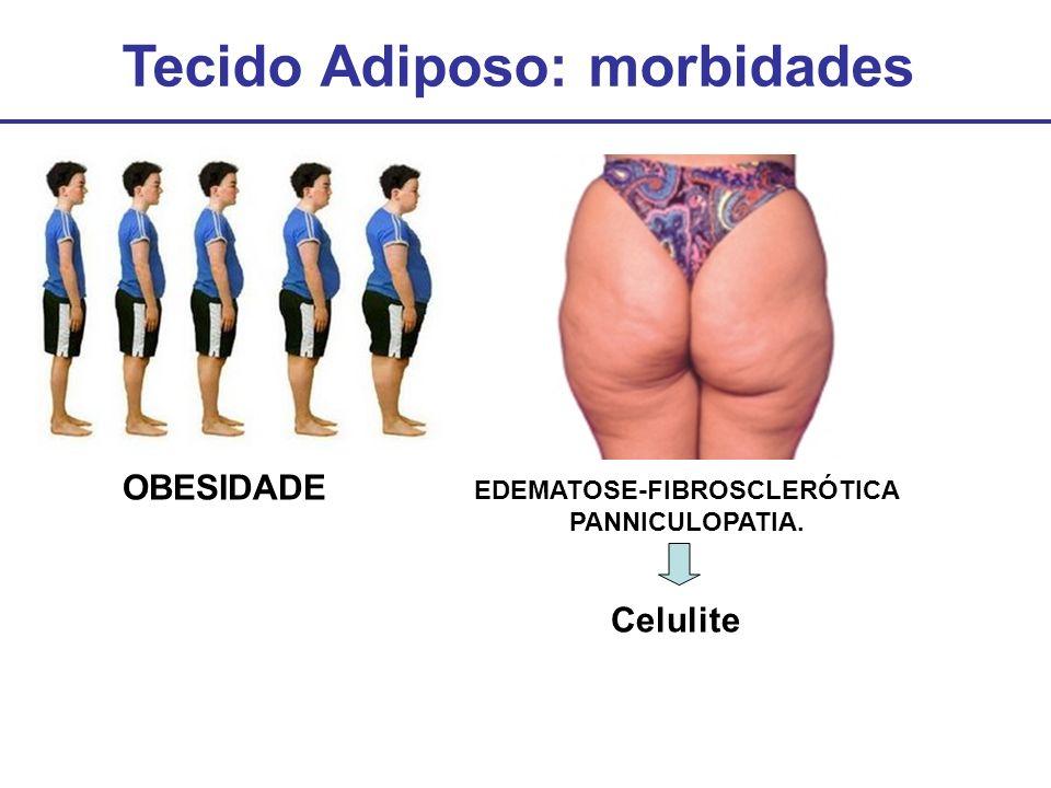 Tecido Adiposo: morbidades EDEMATOSE-FIBROSCLERÓTICA