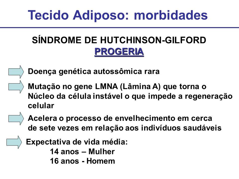 Tecido Adiposo: morbidades SÍNDROME DE HUTCHINSON-GILFORD