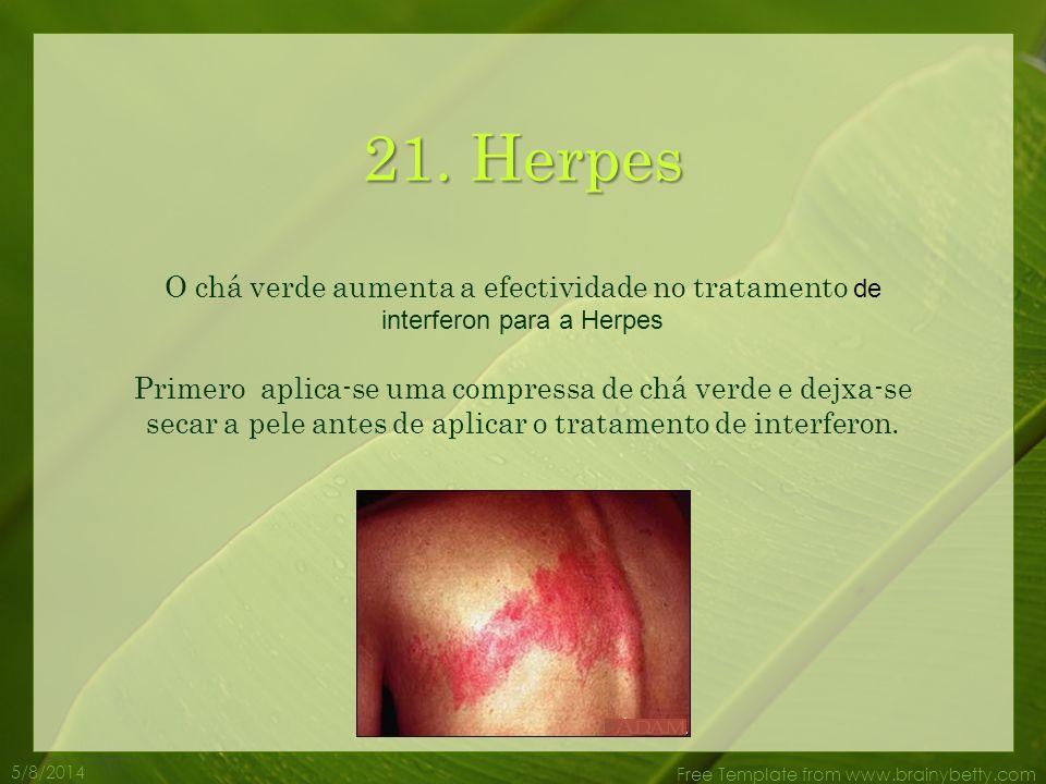 21. Herpes O chá verde aumenta a efectividade no tratamento de interferon para a Herpes.