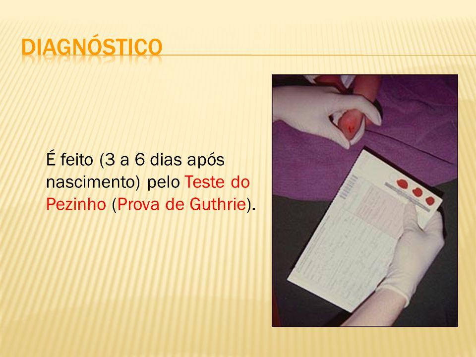 Diagnóstico É feito (3 a 6 dias após nascimento) pelo Teste do Pezinho (Prova de Guthrie).