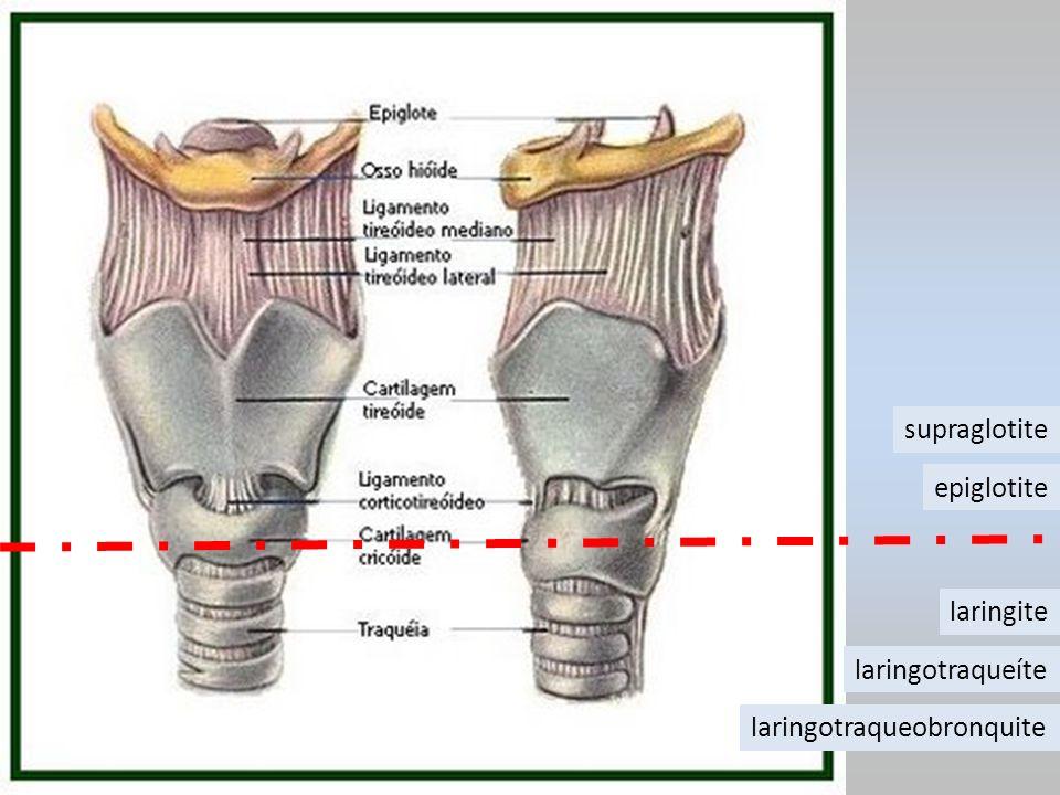 supraglotite epiglotite laringite laringotraqueíte laringotraqueobronquite