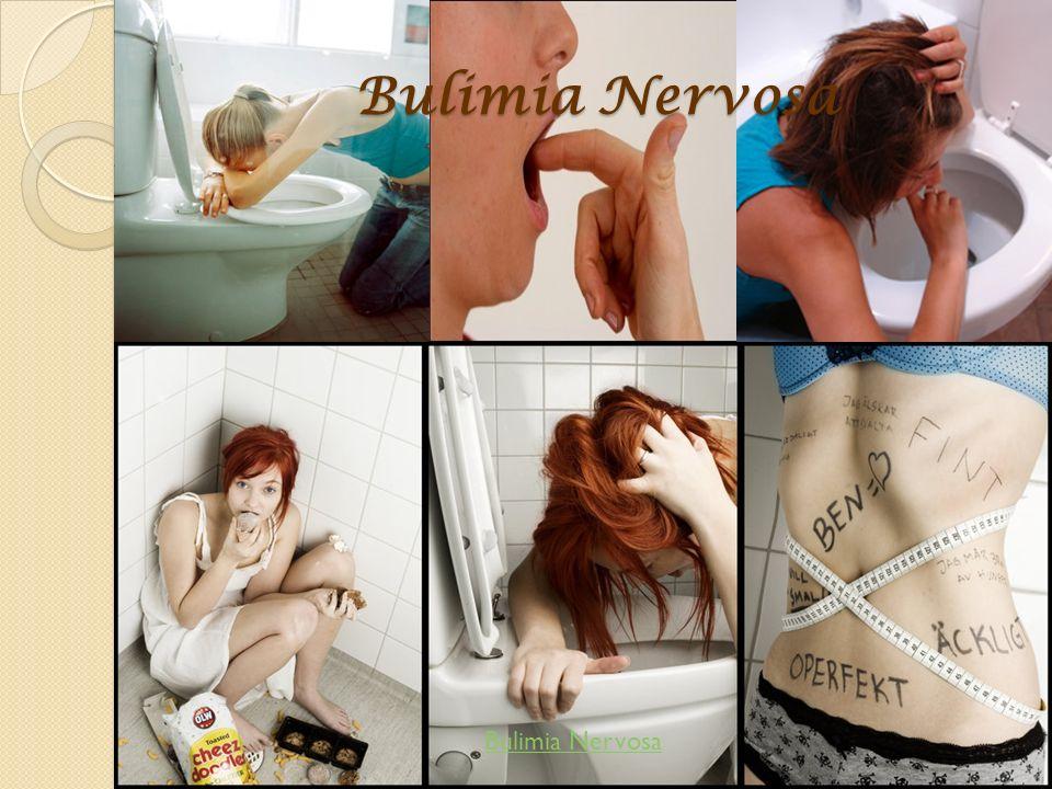 Bulimia Nervosa Bulimia Nervosa